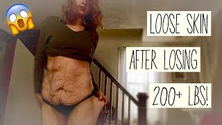 LOOSE SKIN AFTER LOSING 210 POUNDS! | My Process on Getting Approved for GASTRIC SLEEVE