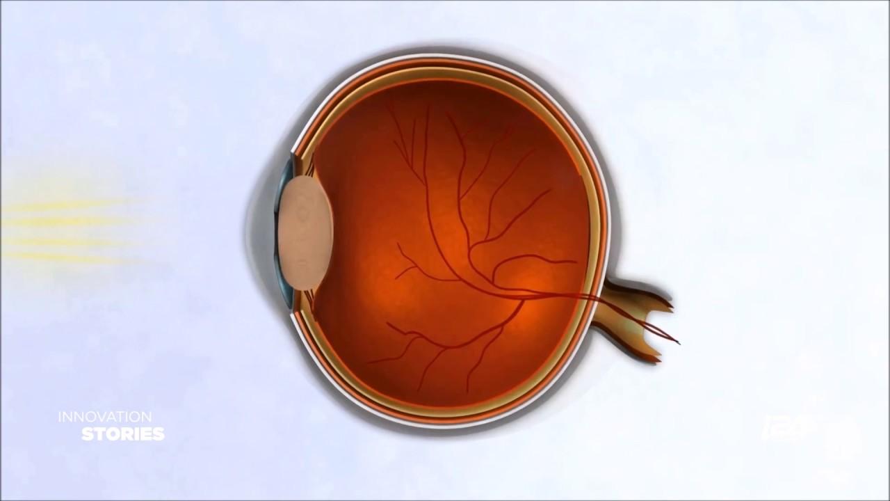 EyeYon Medical - Corneal Healing Solutions