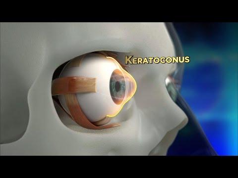 Keratoconus Procedure Explained