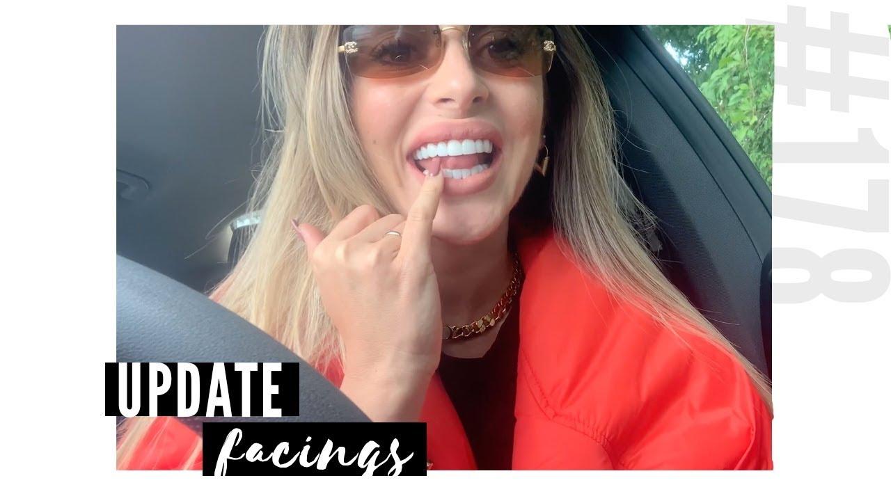 Update Over Mijn Facings Vlog 178 Malika Saymak Youtube