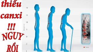 💚 Thiếu Canxi | Dấu Hiệu Cảnh Báo Cơ Thể Thiếu Canxi Trầm Trọng  | Sống Khỏe Mỗi Ngày ‼