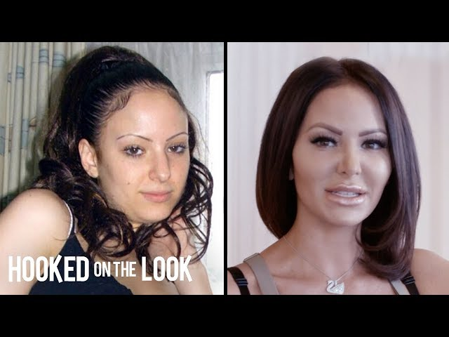 Plastic Surgery Addict Spends $130,000 To Look 'Perfect' | HOOKED ON THE LOOK