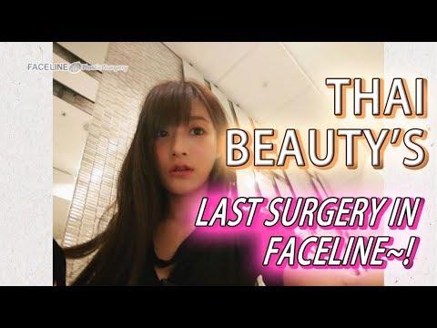 [Plastic Surgery in Korea] Pretty Thailand model Ploy's plastic surgery Vlog