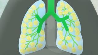 Infection respiratoire, le corps