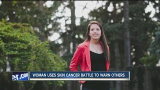 Lockport woman uses her skin cancer battle to warn others