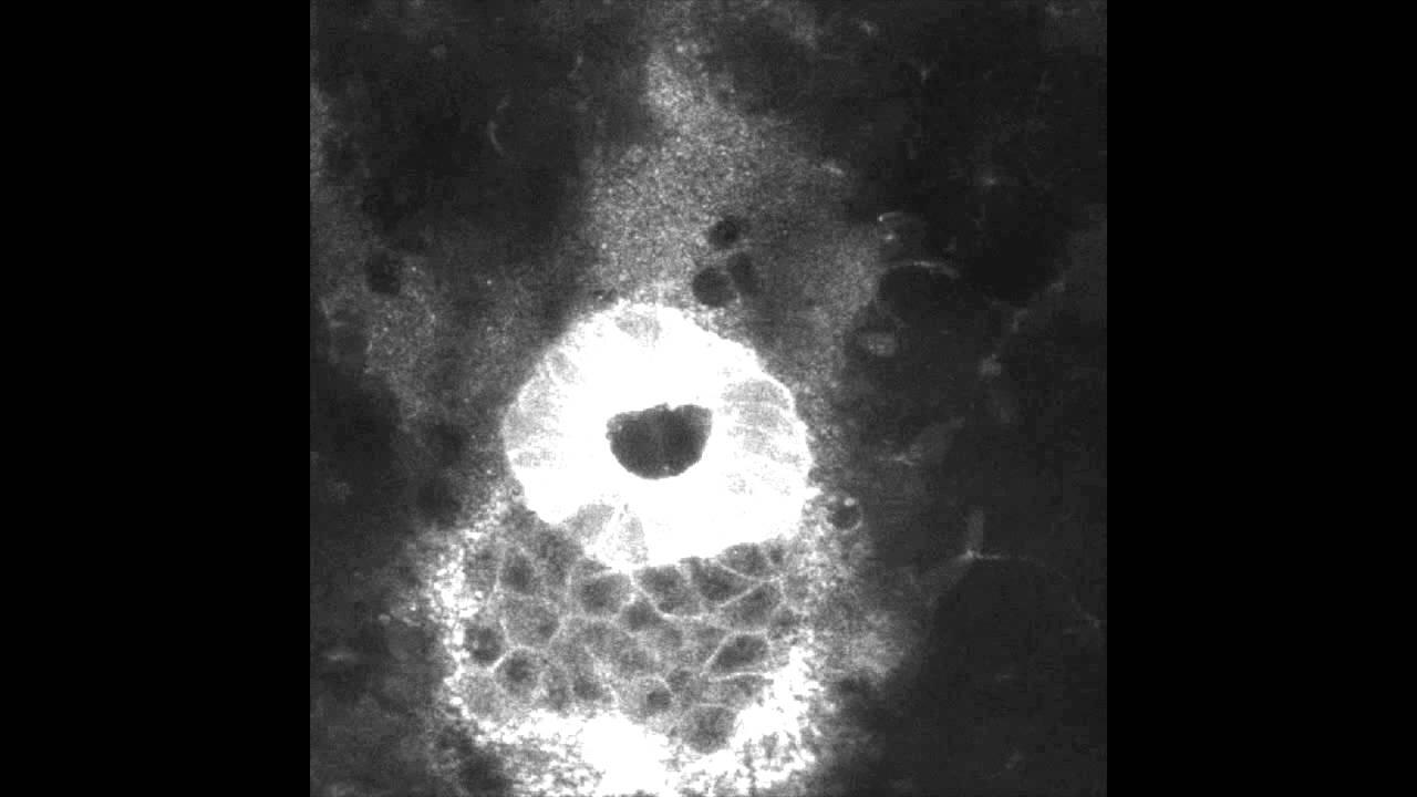 Kupffer's vesicle formation in zebrafish - YouTube