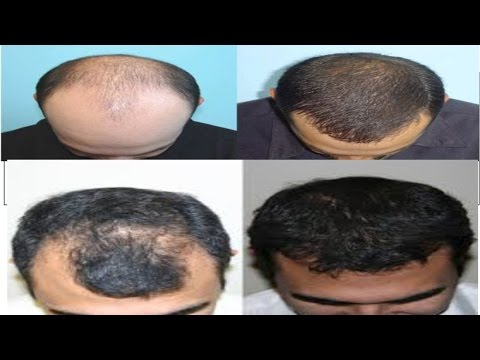 Hair Transplantation in Bangalore, Hair Transplantation clinics in Bangalore