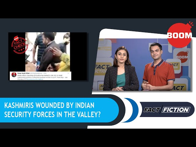 Kashmiris Wounded By Indian Security Forces In The Valley?