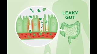 5 Causes of A Leaky Gut And The Symptoms it Causes