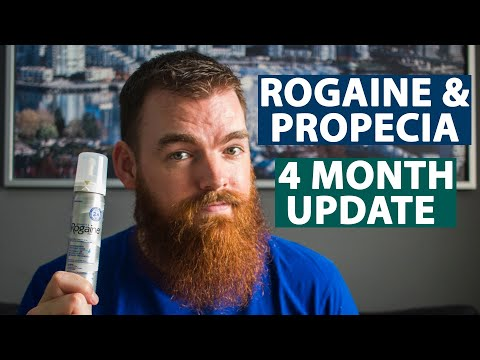 minoxidil-results-|-4-months-using-rogaine-&-propecia
