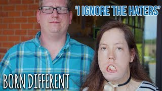 Woman Who Can't Smile Becomes Disability Rights Advocate | BORN DIFFERENT