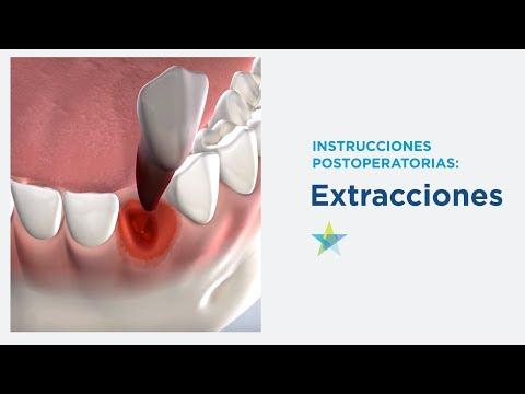 recetas dieta blanda postoperatorio dental