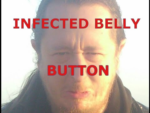 how to clean an infected belly button