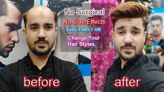 Watch till end, non surgical hair replacement system us call 📲9650914665 & whatsp also