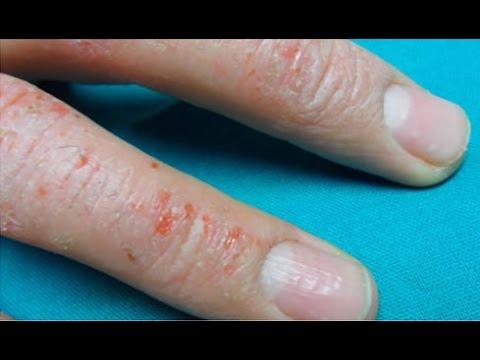 El método simple del tratamiento de la psoriasis