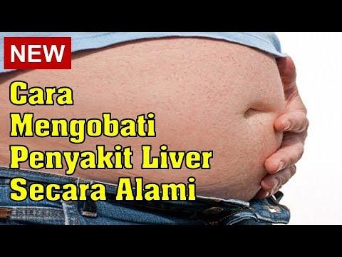 cara-mengobati-liver-secara-alami