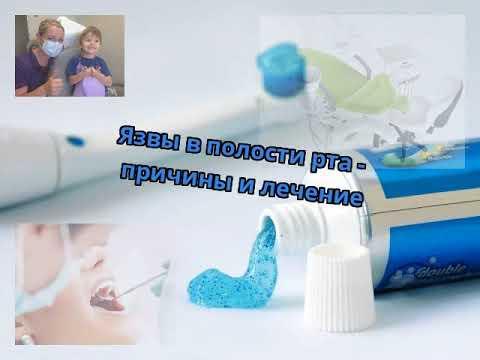 Язвы в полости рта - причины и лечение