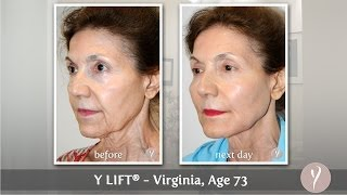 Y LIFT ® 2014 - Virginia | Instant, Non Surgical Facelift