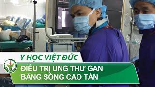 Điều trị ung thư gan bằng sóng cao tần | BV Việt Đức