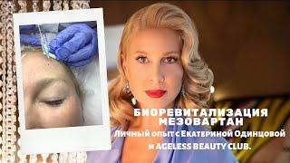 Биоревитализация лица, шеи и декольте Мезовартан / Meso-Warthon, Mesoeye глаза. Личный опыт до после