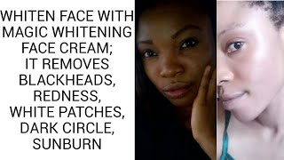 Magic Whitening Face Cream | Whitens Face, Removes Blackheads, Sunburn, Redness, White Patches