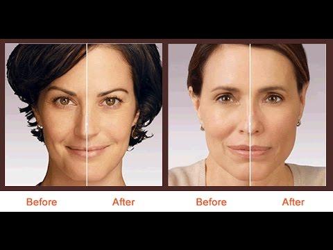 Juvederm NYC - (212) 644-6454 - Juvederm Botox Soft Lift - New York, NY