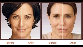 Juvederm NYC - (212) 644-6454 - Juvederm Botox Soft Lift - New York, NY