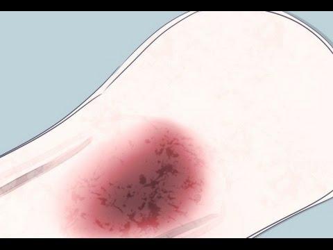 Como y cuando aparece el sangrado de implantacion