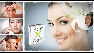 Acne X Factor System Review 2018