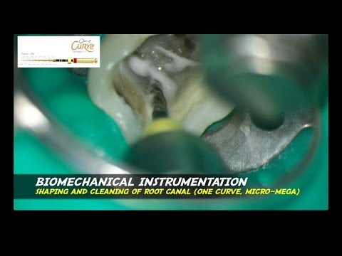 ONE VISIT ENDODONTIC treatment abscess big sinus tract bioceramic sealer ceramed