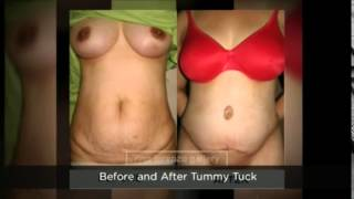 Tummy Tuck Surgery Manila Philipines Thumbnail