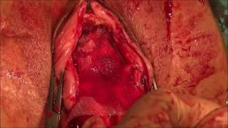 Repeat youtube video a new technic, repair of the anterior vaginal wall with Anterior Transobturator Mesh