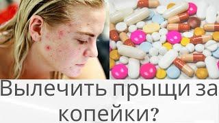 Вылечить прыщи за копейки Обзор аптечных средств Убрать прыщи дома раз и навсегда Acne treatment