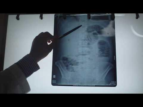 Phân tích hình mờ trên x quang bụng