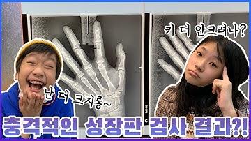 성장판 검사 했어요! 성장판 닫혀도 키 크는 법 아시나요?키 크는 방법 알려드려요._아롱다롱TV