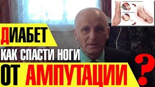 Серия 95 Лечение диабета методом Бутейко заменит любые таблетки(сайт о методе Бутейко: http://www.mbuteyko.ru серия №95 сериала