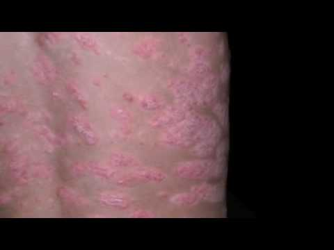 Psoriasis and Kids documentary - I'm Just Like You