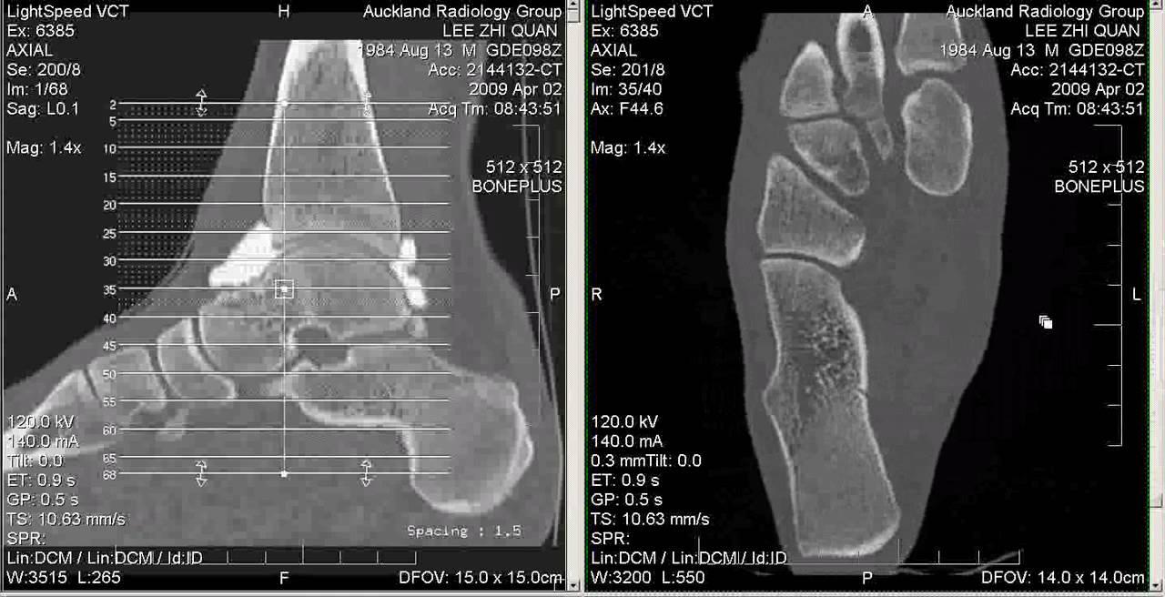Ct Arthrogram Of My Ankle 2 April 2009 Youtube