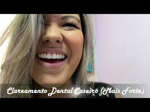 Clareamento Dental Caseiro Como Clarear Os Dentes Em Casa Youtube