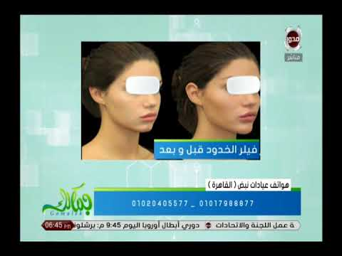 جمالك فيلر الخدود لوجه متناسق و أجمل مع مراكز نبض Youtube