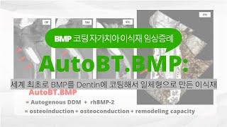 [한국치아은행] #21 . BMP를 코팅한 자가치아 뼈…