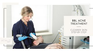 BBL Acne Treatment I Clearer Skin I Step-By-Step