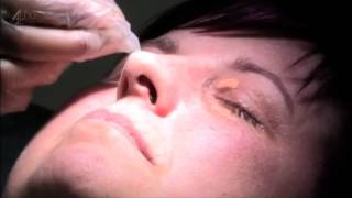 Xanthelasma  Treatment on Embarrasing Bodies at Specialist Skin Clinic   Dr Maria gonzalez