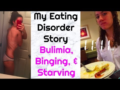 My Eating Disorder Story (photos included) | Bulimia was eating me alive..