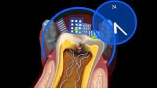 Что такое кариес  Как лечить кариес  Терапевтическая стоматология(В этом видео мы вам расскажем что такое кариес зубов. А так же поговорим о том, откуда возникает кариес...., 2015-10-26T17:32:05.000Z)