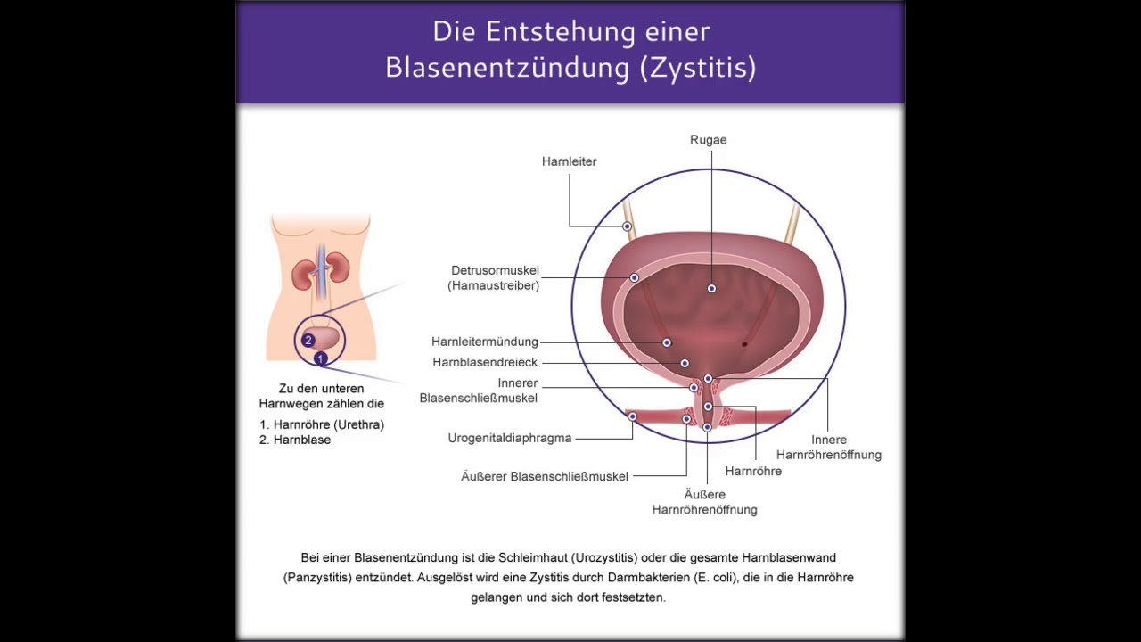 Symptome Blasenentzündung