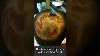 Amazing recovery from hair loss caused by bacterial / fungal infection