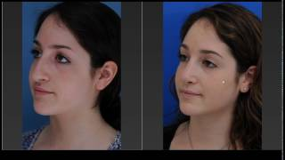 Rhinoplasty: Using Imaging Technology To Create Great Results