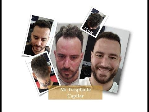Mi trasplante capilar tras 12 meses - Soy Estilista y Barbero