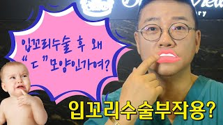 [골든뷰] 입꼬리수술부작용? 입술성형 후 입술이 이상해…